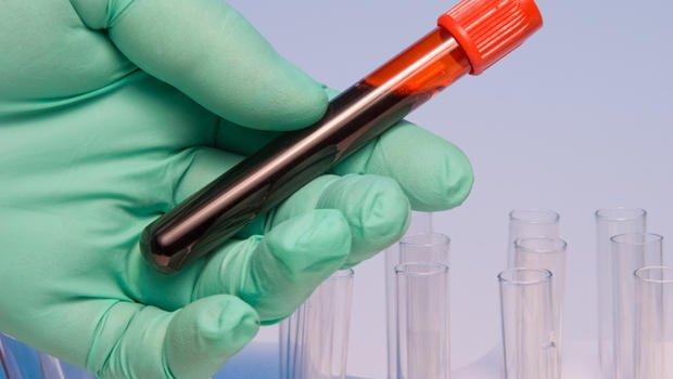 Teste de sangue pode ajudar no cancer de pulmão - informacaobrasil.com.br